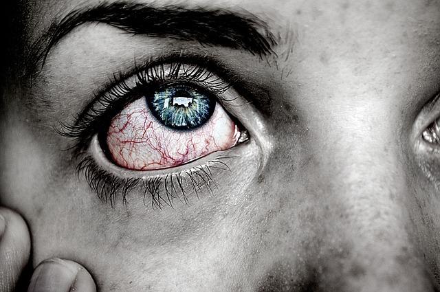 עיניים יבשות: אישה שמה יד על הפנים ורואים אדמומיות בעין שלה